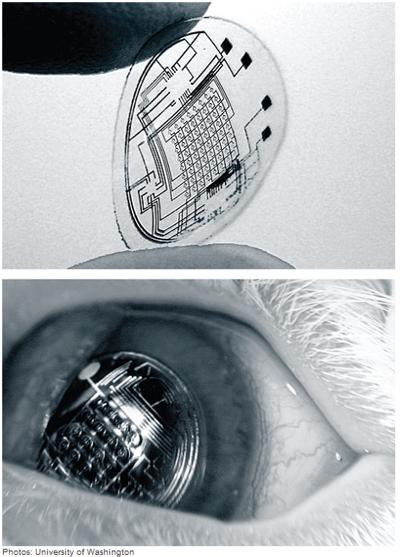 Линза Bionic - офтальмологический гаджет