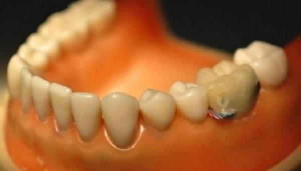 Умные зубы в борьбе против обжорства и курения
