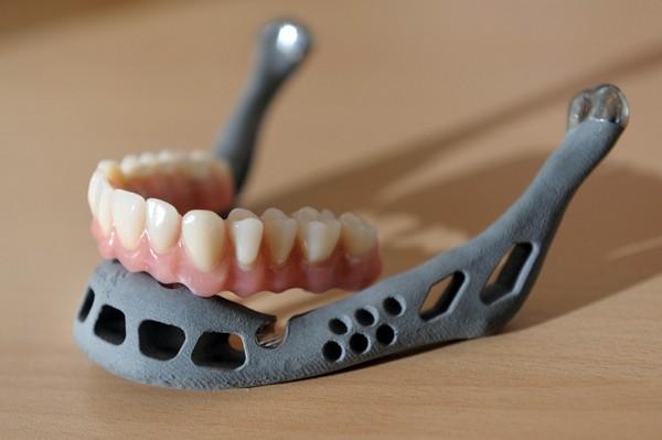 Напечатанная на 3D-принтере вставная челюсть