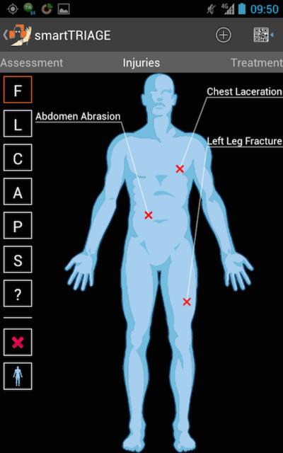 В приложении SmartTRIAGE для оказания медицинской помощи надо нажать на человеческую фигуру, выбрать симптомы и получить план лечения.