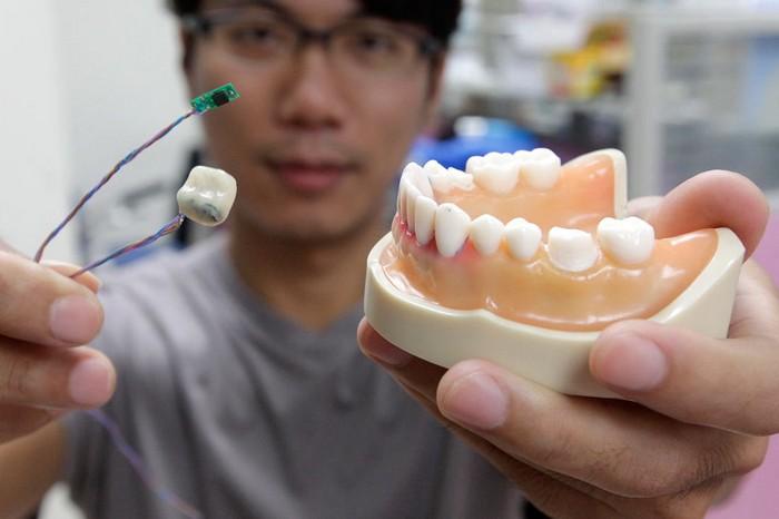 Smart Tooth – умные зубы против обжорства и курения