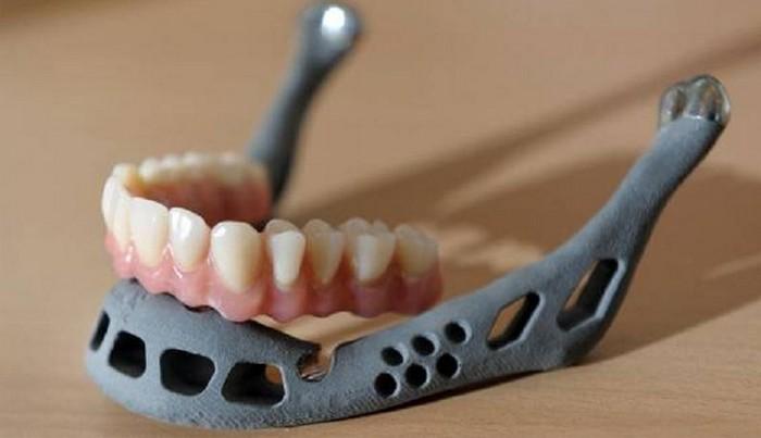 Напечатанная на принтере вставная челюсть
