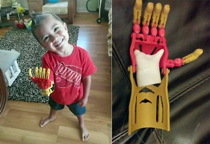 Детский протез рука Железного человека распечатан на 3D-принтере