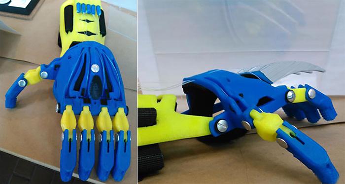 Детский протез в виде руки Росомахи распечатан на 3D-принтере
